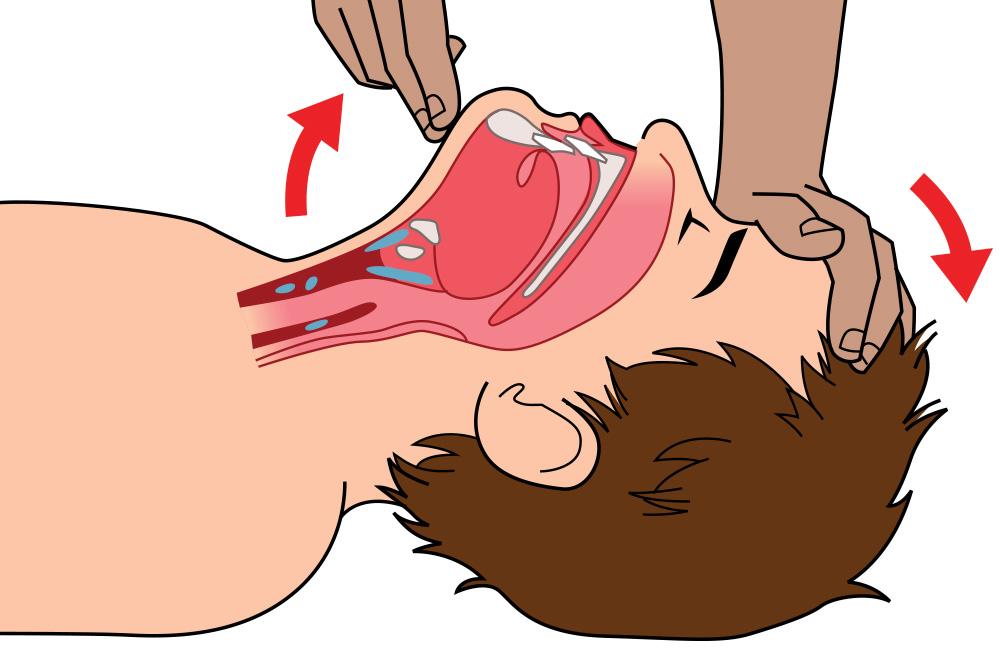 premiers secours-bascule-tête-gestes qui sauvent-illustration