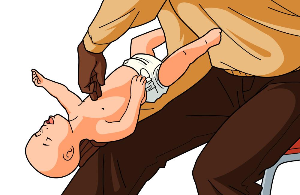 premiers secours-éttouffement-bébé-gestes qui sauvent-illustrations