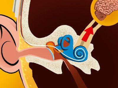 Mon implant cochléaire